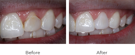 Veneers Before After Case-3