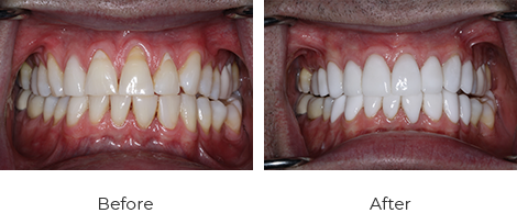 Veneers Before After Case-1