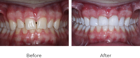 Veneers Before After Case-2