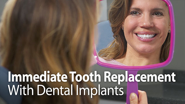 Immediate Tooth Replacement With Dental Implants